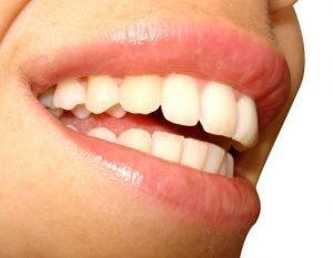 Avec de belles dents au succès
