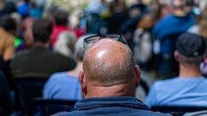 La calvitie : le problème de beaucoup d'hommes