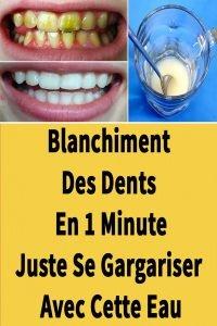 Ainsi, vous pouvez blanchir vos dents avec des produits naturels
