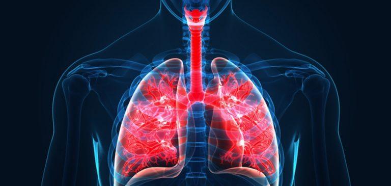 Coronavirus: il faut des mois pour que les poumons se rétablissent