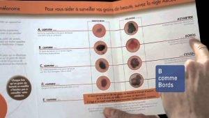 Cancer de la peau: si vous appartenez à ce groupe, il y a de fortes chances de développer un basaliome